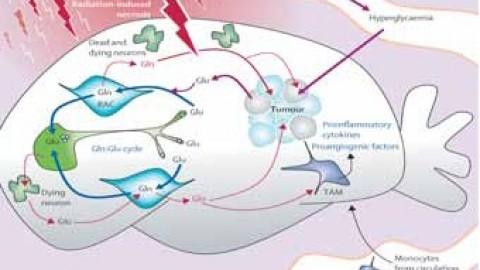 Le régime cétogène riche en gras pour guérir les tumeurs cérébrales