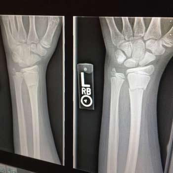x-ray-1273382_1280-7-3